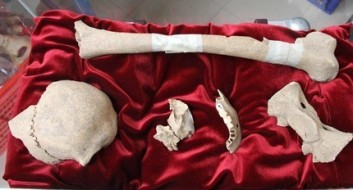 The bones of the artist Caravaggio found in an underground mass grave of a small church in central Italy's west coast. DNA testing done on the bones matched genetic material taken from the artist's descendants living in the 21st century.